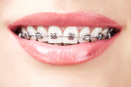 Orthodontics-Pic