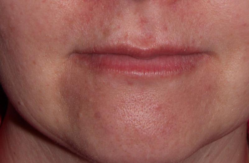 Botox Mooroolbark | Manchester Rd Dental, Mooroolbark