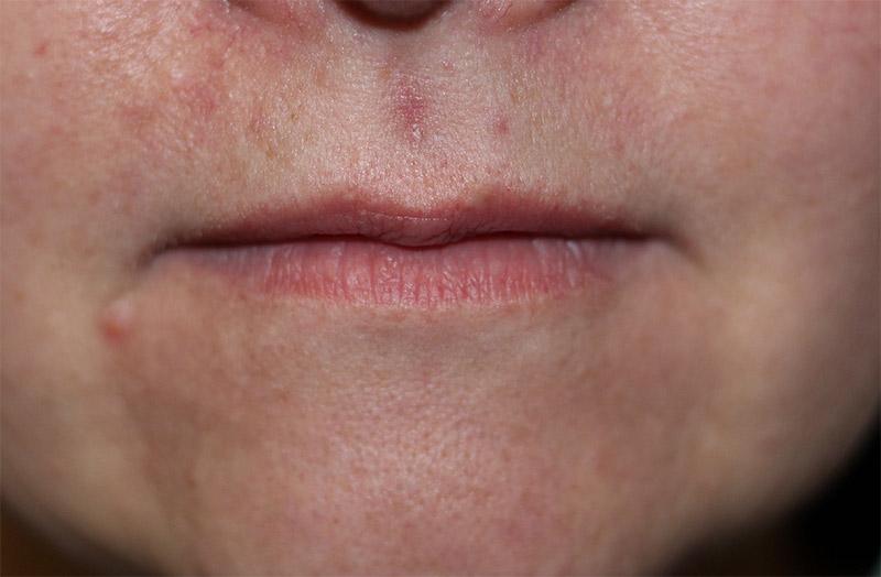 spot 2 | Manchester Rd Dental Mooroolbark