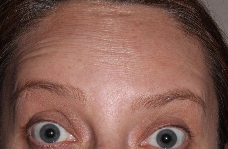 wrinkle-after