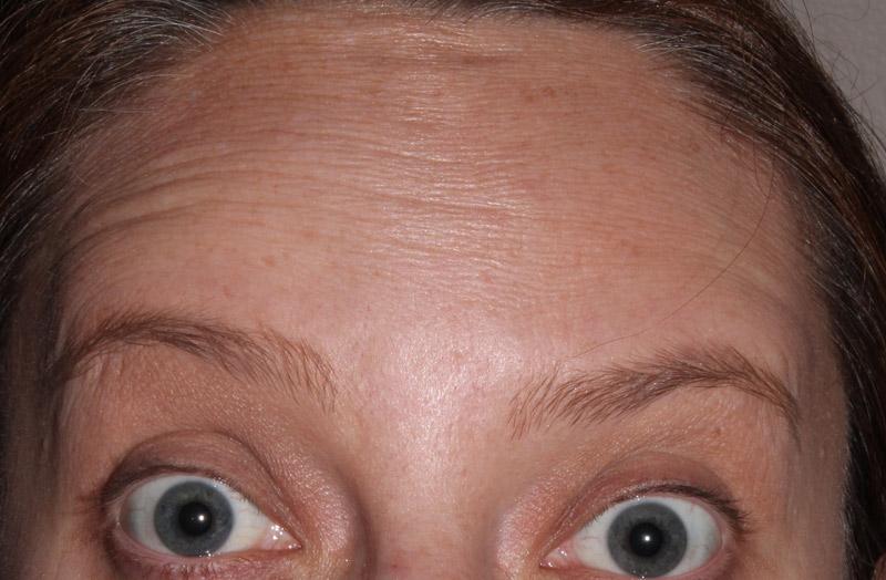 Wrinkle | Manchester Rd Dental Mooroolbark
