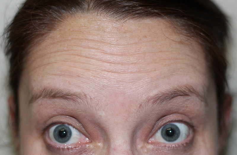 wrinkle-before