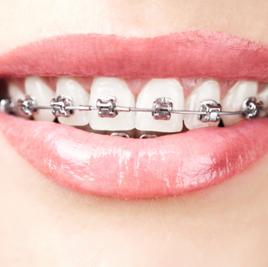 Orthodontics | Manchester Rd Dental Mooroolbark